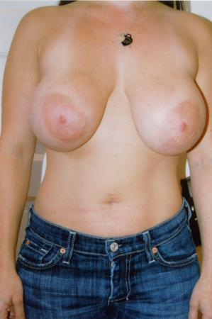 Post Implant Reoperation: Patient 5 - Before Image