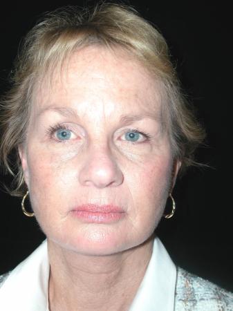 Facelift: Patient 5 - After Image