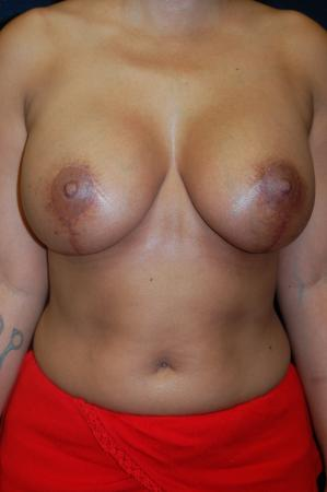 Traditional Mastopexy With Implants: Patient 10 - After Image 1