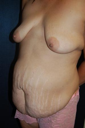 Traditional Mastopexy With Implants: Patient 20 - Before Image 2
