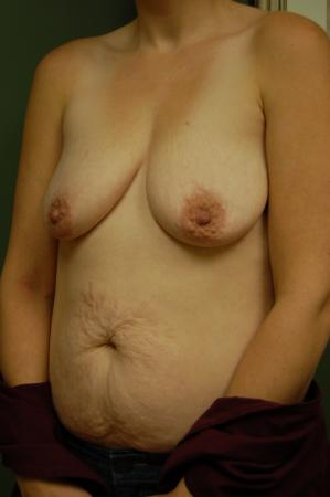 Traditional Mastopexy With Implants: Patient 4 - Before and After Image 2