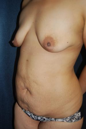 Traditional Mastopexy With Implants: Patient 15 - Before and After Image 2
