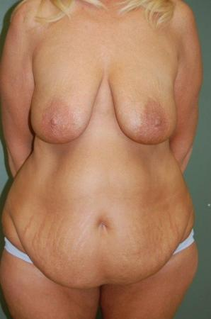 Traditional Mastopexy With Implants: Patient 7 - Before Image 1