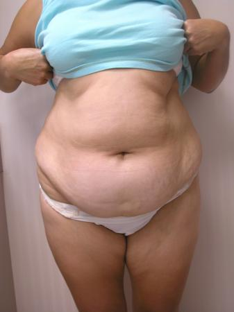 Tummy Tuck: Patient 8 - Before Image