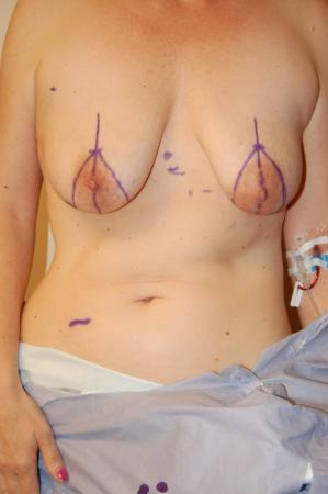 Traditional Mastopexy With Implants: Patient 6 - Before Image 1