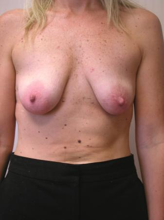 Circumareolar Mastopexy Augmentation: Patient 2 - Before Image