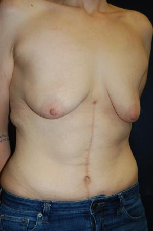 Traditional Mastopexy With Implants: Patient 17 - Before Image 2