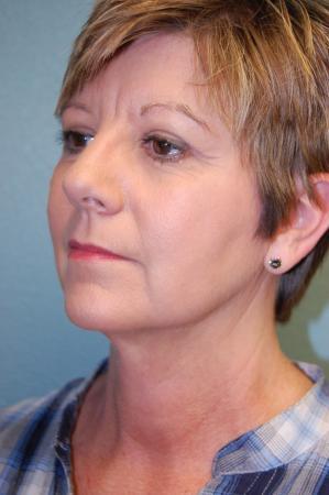 Liposuction: Patient 3 - After Image