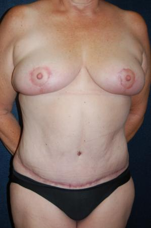 Traditional Mastopexy Without Implants: Patient 2 - After Image