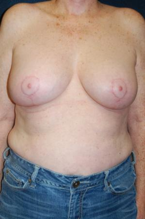 Traditional Mastopexy With Implants: Patient 11 - After Image 1
