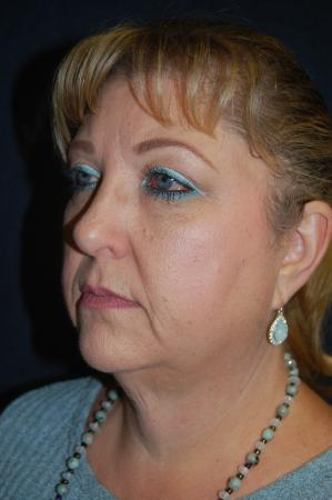 Facelift: Patient 6 - Before Image 2