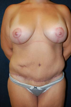 Traditional Mastopexy With Implants: Patient 2 - After Image 1