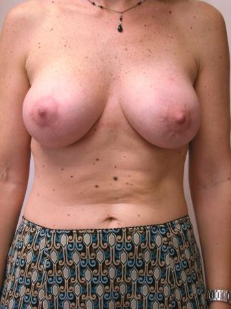 Circumareolar Mastopexy Augmentation: Patient 2 - After Image