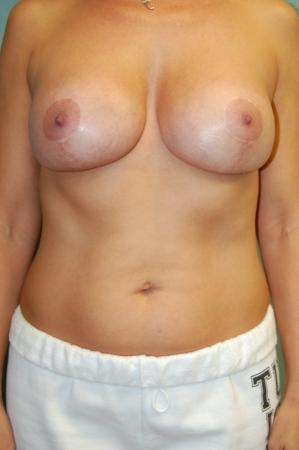 Traditional Mastopexy With Implants: Patient 5 - After Image 1