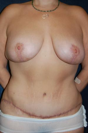 Traditional Mastopexy With Implants: Patient 21 - After Image