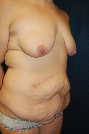 Traditional Mastopexy With Implants: Patient 2 - Before and After Image 2