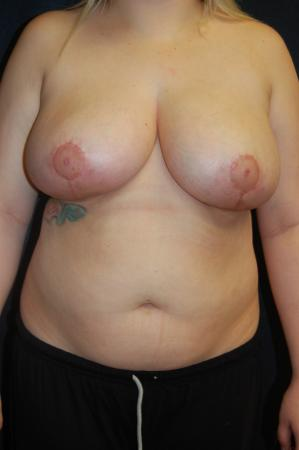 Traditional Mastopexy Without Implants: Patient 1 - After Image