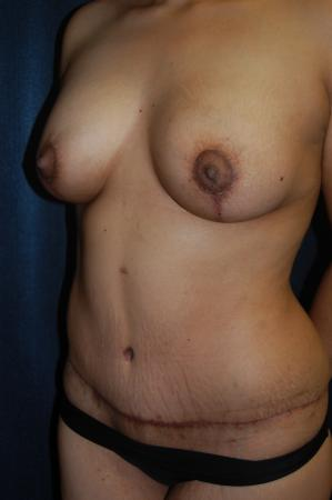 Traditional Mastopexy With Implants: Patient 15 - After Image 2