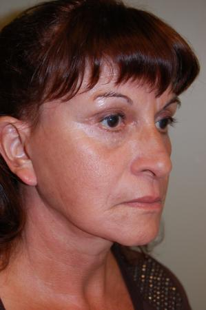 Facelift: Patient 1 - After Image 2