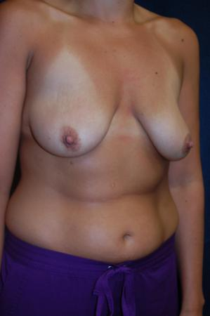 Traditional Mastopexy With Implants: Patient 8 - Before and After Image 2