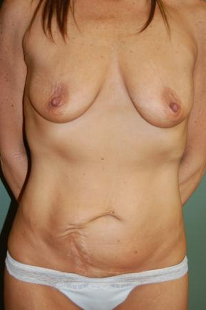 Mommy Makeover: Patient 7 - Before Image