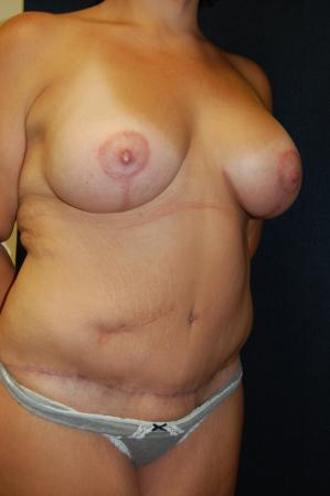 Traditional Mastopexy With Implants: Patient 2 - After Image 2