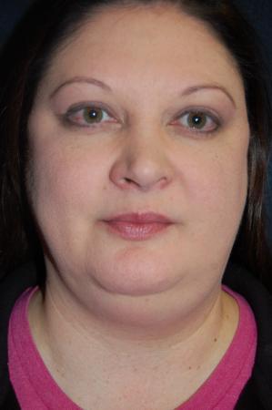 Liposuction: Patient 5 - Before Image