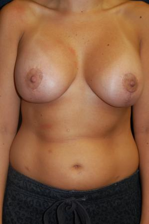 Traditional Mastopexy With Implants: Patient 13 - After Image