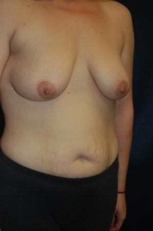 Traditional Mastopexy With Implants: Patient 19 - Before Image 2