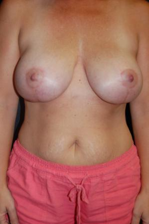 Traditional Mastopexy With Implants: Patient 22 - After Image
