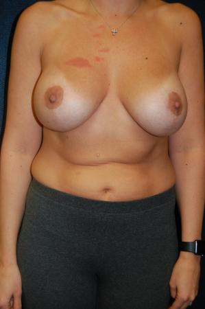 Traditional Mastopexy With Implants: Patient 8 - After Image