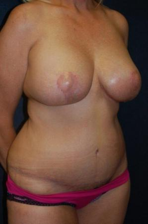Traditional Mastopexy With Implants: Patient 7 - After Image 2