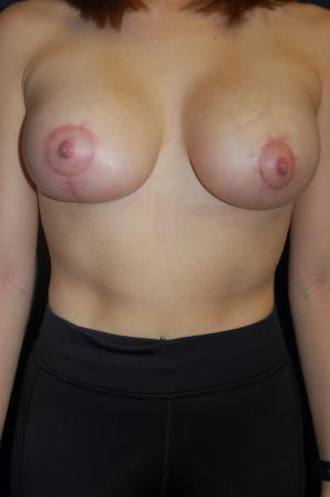Traditional Mastopexy With Implants: Patient 9 - After Image