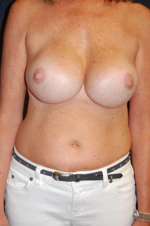 Post Implant Reoperation: Patient 9 - Before Image