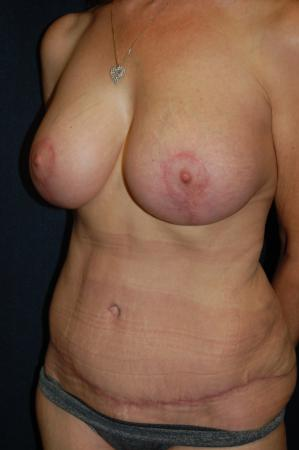 Traditional Mastopexy With Implants: Patient 16 - After Image 2