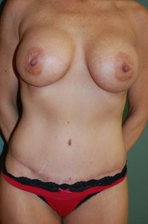 Tummy Tuck: Patient 9 - After Image