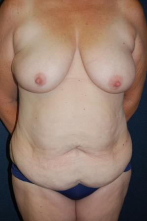 Traditional Mastopexy Without Implants: Patient 2 - Before Image