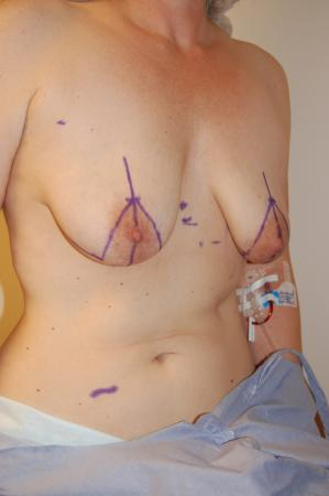 Traditional Mastopexy With Implants: Patient 6 - Before and After Image 2