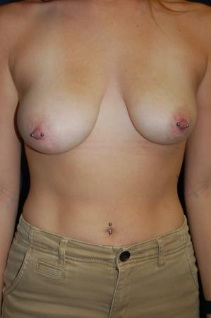 Traditional Mastopexy With Implants: Patient 9 - Before Image