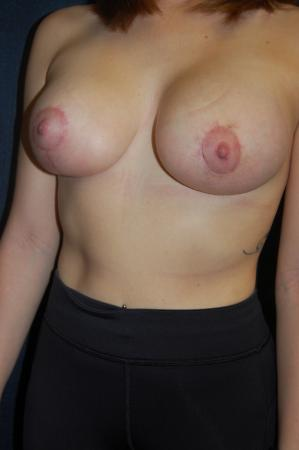 Traditional Mastopexy With Implants: Patient 9 - After Image 3