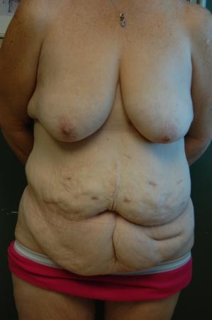 Traditional Mastopexy With Implants: Patient 12 - Before Image