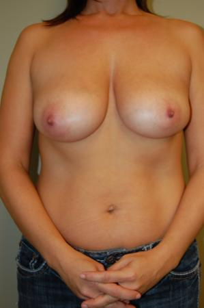 Traditional Mastopexy With Implants: Patient 5 - Before Image