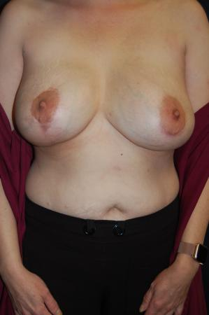 Post Implant Reoperation: Patient 7 - After Image