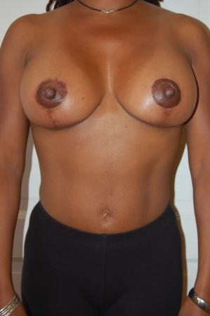 Traditional Mastopexy With Implants: Patient 3 - After Image 1
