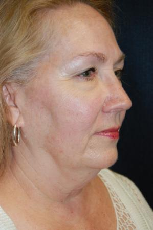 Facelift: Patient 2 - Before and After 2