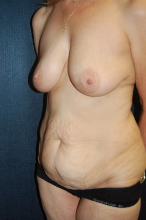 Traditional Mastopexy With Implants: Patient 16 - Before Image 2