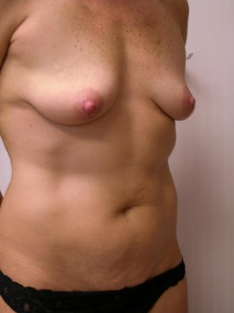 Mommy Makeover: Patient 10 - Before Image