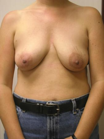Circumareolar Mastopexy Augmentation: Patient 1 - Before Image