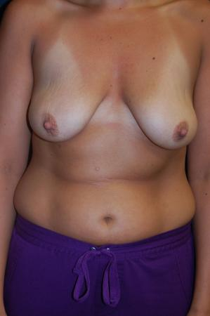 Traditional Mastopexy With Implants: Patient 8 - Before Image