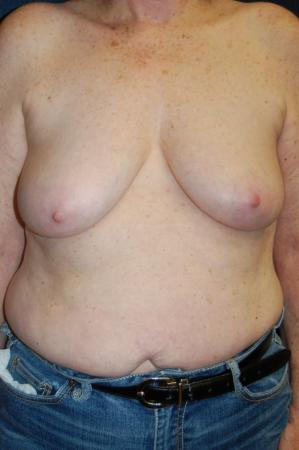Traditional Mastopexy With Implants: Patient 11 - Before Image 1